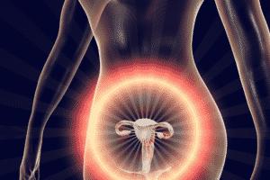Les stades de l'endométriose